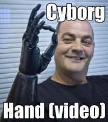 cyborg braccio per amputati video